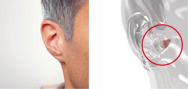 参考例/フォナック ナノ 耳あな型